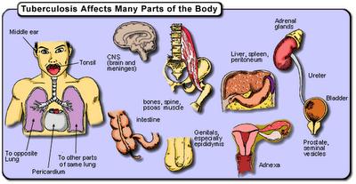rccm tuberculosis body Cách phát hiện và phòng tránh lao ruột