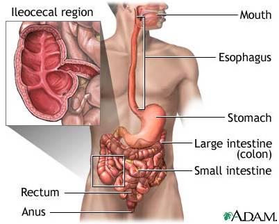 702256 Bệnh Crohn là gì?