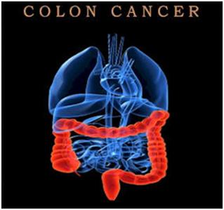 735628 Điều trị ung thư đại tràng giai đoạn cuối