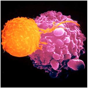 735743 Những lời khuyên trong việc điều trị ung thư đại tràng