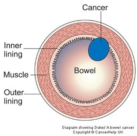 735746 Giai đoạn của ung thư đại tràng