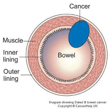 735747 Giai đoạn của ung thư đại tràng