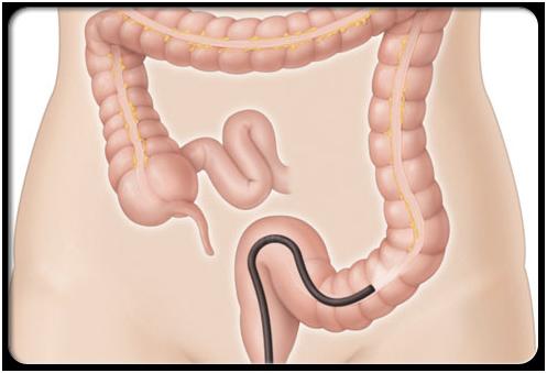740206 Viêm đại tràng: triệu chứng và tổn thương