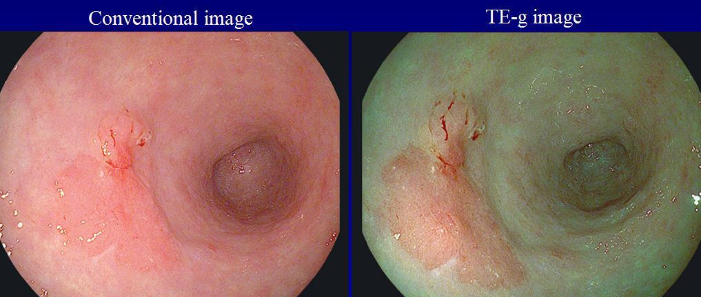 iscan4 Hệ thống EPK i với chức năng I scan trong chẩn đoán nội soi tiêu hóa