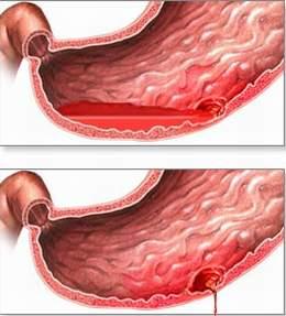 702490 Nguyên nhân của viêm dạ dày cấp và mạn tính