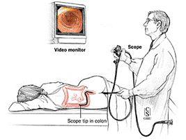 Quá trình nội soi đại tràng 1