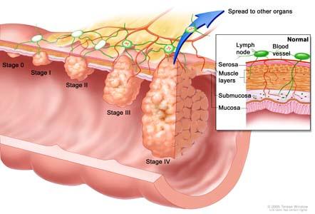 Ung thư đại tràng di căn sang gan 1