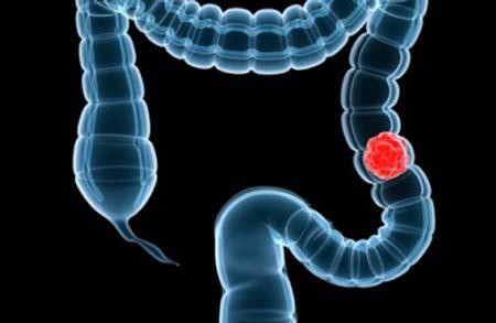Ung thư đại trực tràng - Những điều bạn nên biết 1