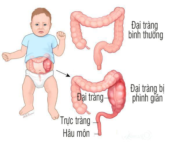 2.5. Bệnh phình đại – trực tràng bẩm sinh (Hirschsprung) 1