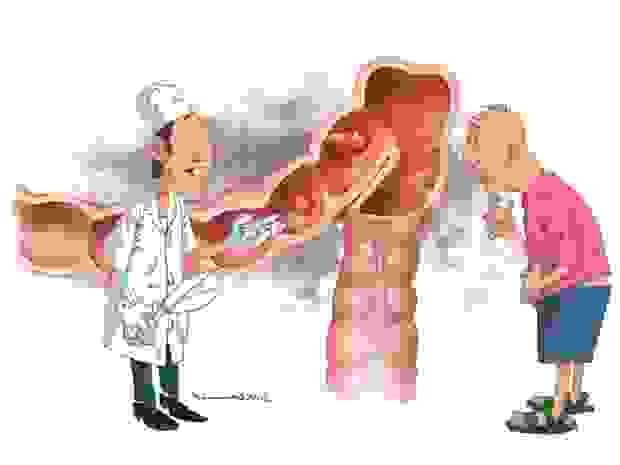 Điều trị ung thư đại trực tràng 1