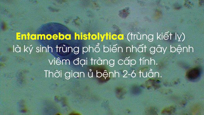 Viêm đại tràng cấp do kí sinh trùng 1