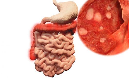 Bệnh viêm loét đại tràng là gì? 1
