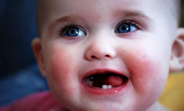 Trẻ tiêu chảy do mọc răng – khi nào cần can thiệp? 1
