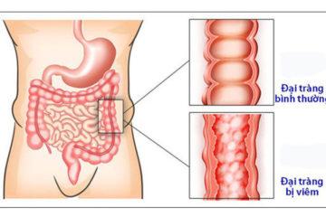 Triệu chứng để bạn phân biệt giữa viêm đại tràng và Đại tràng co thắt