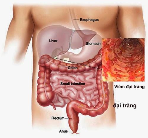 Đau bụng do viêm đại tràng ở vị trí nào? 1
