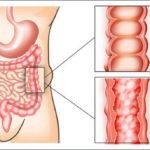 Bệnh viêm đại tràng co thắt nguyên nhân, triệu chứng và phòng ngừa