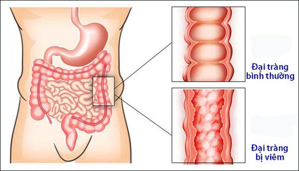Bệnh viêm đại tràng co thắt nguyên nhân, triệu chứng và phòng ngừa 1