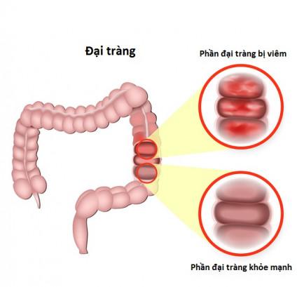 Viêm đại tràng cấp tính - Dấu hiệu và giải pháp phòng, trị 1