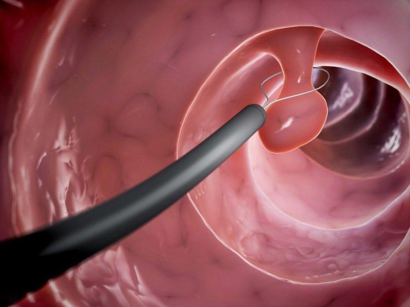 Nguyên tắc điều trị polyp đại tràng 1