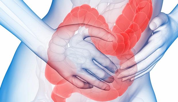 dấu hiệu của viêm đại tràng xuất huyết-min