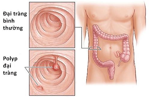 Sinh thiết polyp đại tràng thực hiện như thế nào? 1