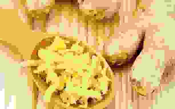 Bài thuốc chữa viêm đại tràng thể lỏng từ gừng 1