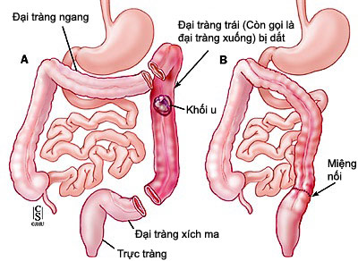 Bệnh viêm trực tràng là gì? 1