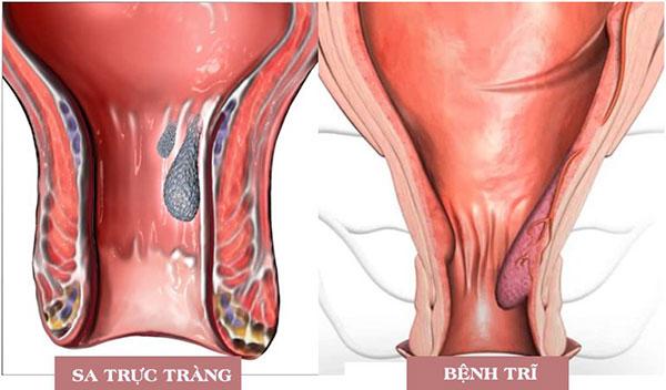 Do biểu hiện chứng sa búi trĩ ở bệnh trĩ rất giống với sa trực tràng 1