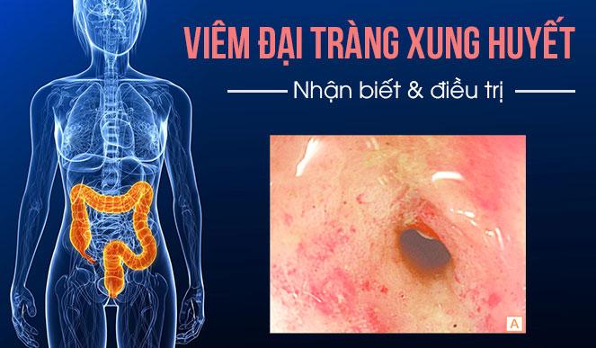 Viêm đại tràng xung huyết - Triệu chứng và cách điều trị 1