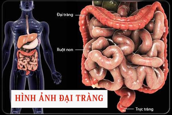 Hình ảnh viêm đại tràng 1