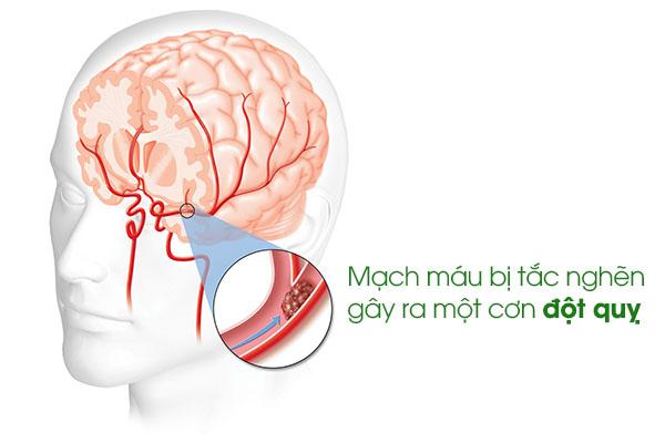 Táo bón do nhóm bệnh lí thần kinh 1