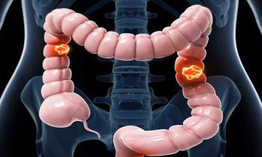 Bệnh ung thư đại tràng và bệnh trĩ là gì? 1