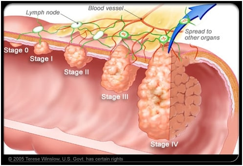 ung thu dai truc trang Điều trị ung thư đại tràng như thế nào?